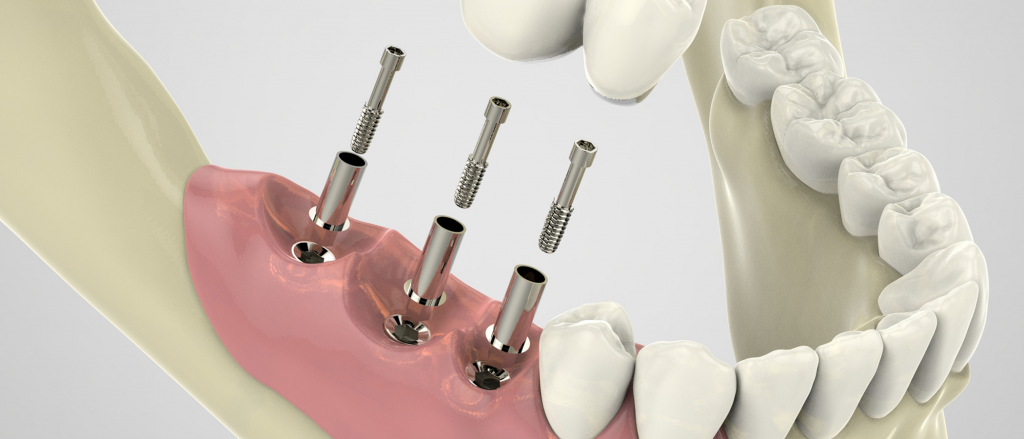 Westdale_June2018_Implants